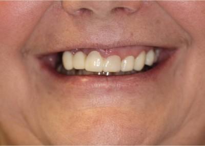 Before Dental Work (A)