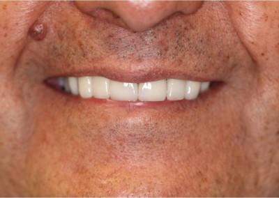 After Dental Work (E)