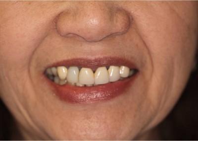 Before Dental Work (F)