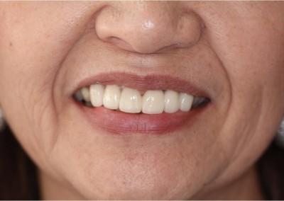 After Dental Work (F)