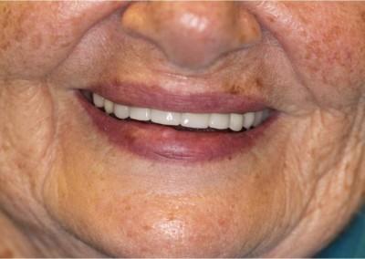 After Dental Work (G)