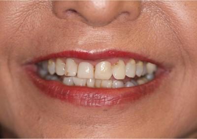 Before Dental Work (H)