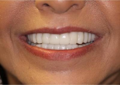 After Dental Work (H)