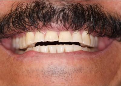 Before Dental Work (I)