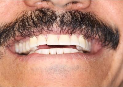 After Dental Work (I)