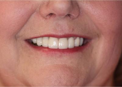 After Dental Work (A)