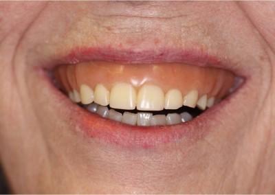 Before Dental Work (B)