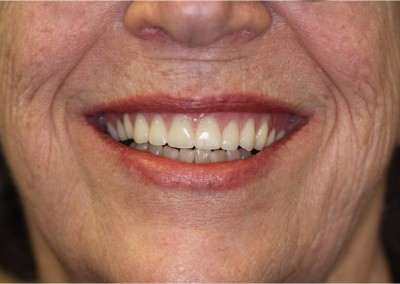 After Dental Work (B)