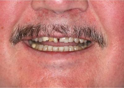 Before Dental Work (C)