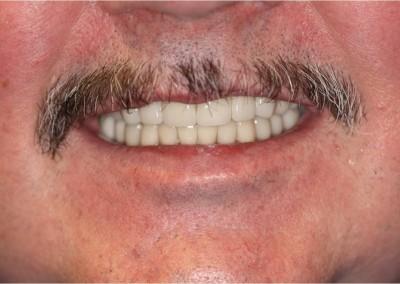 After Dental Work (C)