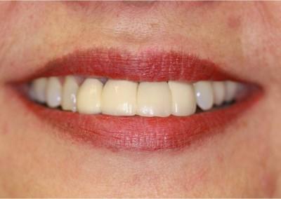 Before Dental Work (D)