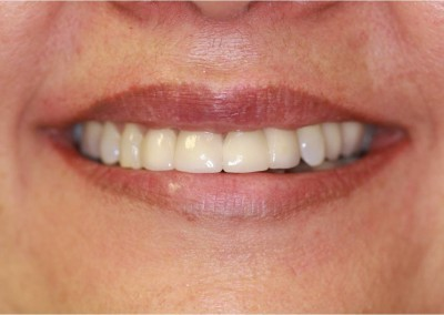 After Dental Work (D)