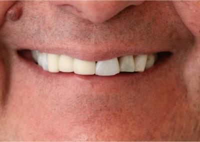 Before Dental Work (E)